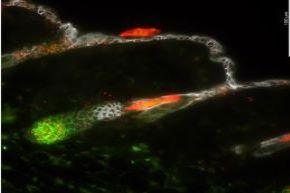 Core A RNAscope in situ hybridization